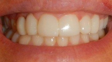 Closing the space between teeth with Bioclear. Before and after results.